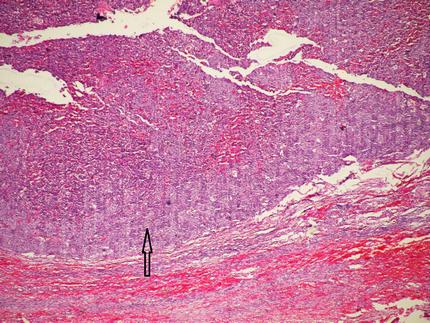 Granulosa cell tumor of ovary histopathology report