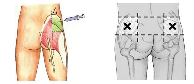 Injeksioni intramuskular, Efektet anesore, Injeksionet, Efekti anesor i injeksioneve, Injeksionet intramuskulare demet
