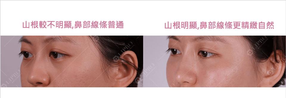 臉部精雕|自體脂肪補臉|顯微套管臉部抽脂|精緻鼻雕|全臉複合式治療