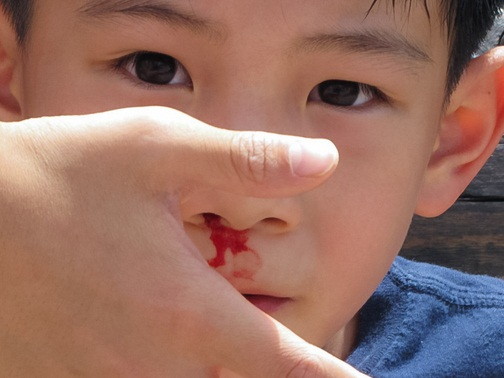 Cara Cepat Menyembuhkan Mimisan pada Anak Kecil