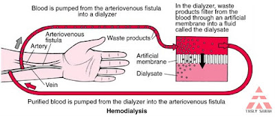Haemodialisis proses cuci darah
