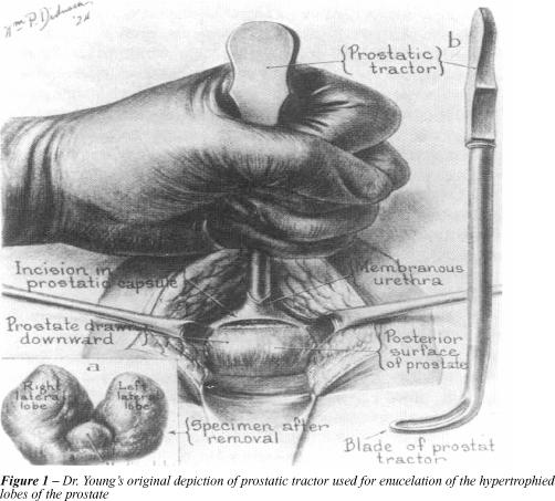 A prosztata fibrózis oka