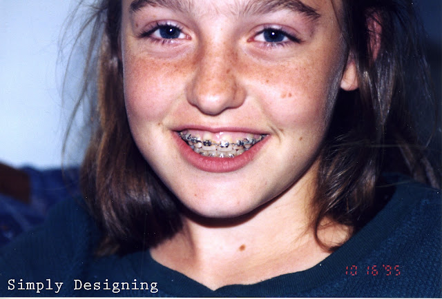 braces #ad #INVStraightTalk