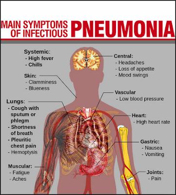 http://www.pusatmedik.org/2016/08/pneumonia-definisi-penyebab-dan-pengobatan-serta-gejala-klinis-penyakit-pneumonia-menurut-ilmu-kedokteran.html