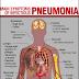 Pneumonia Definisi Penyebab Dan Pengobatan Serta Gejala Klinis Penyakit Pneumonia Menurut Ilmu Kedokteran