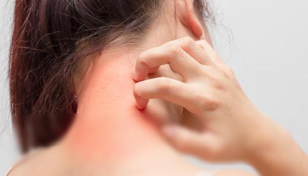 Merk Obat Alergi Gatal Di Apotik Kimia Farama Yang Paten