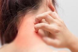 50 Nama Obat Alergi Gatal Di Apotik Kimia Farama Yang Paten