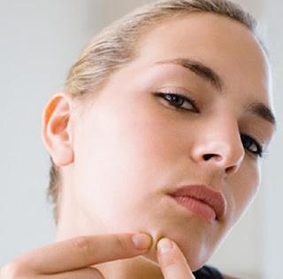 Cara Menghilangkan Komedo, Tips, Kecantikan, Cara Menghilangkan Jerawat,