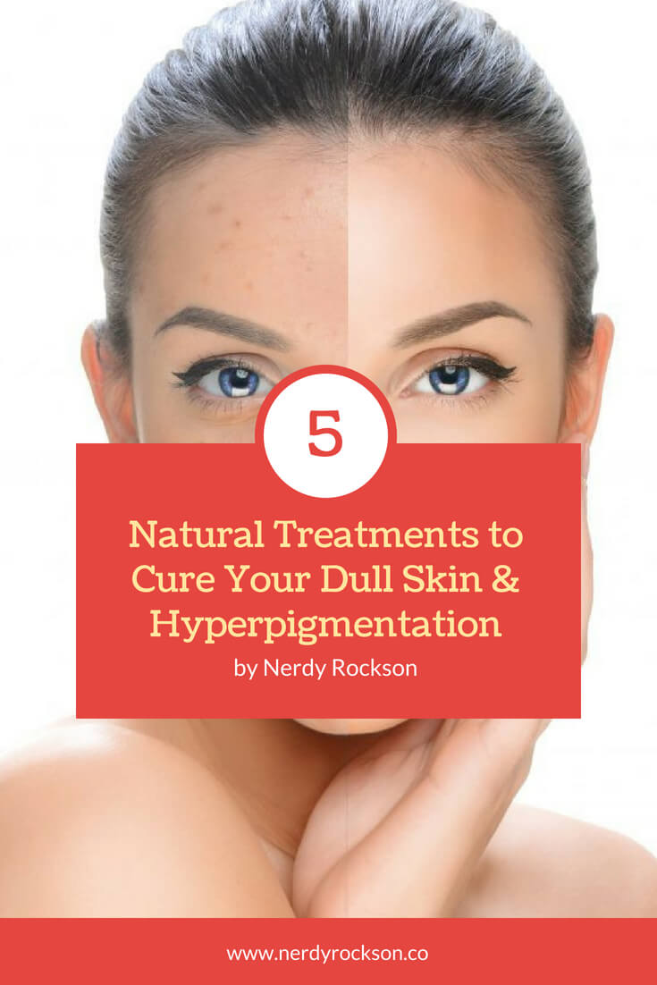 5 Natural Treatments to Cure Your Dull Skin & Hyperpigmentation