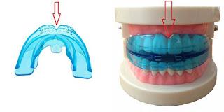 teeth trainer posisi lekukan