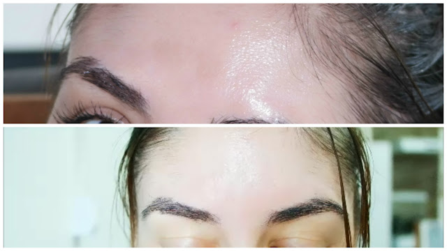hidratante, antioxidante, tratamento de manchas, melasma, peeling de porcelana, tratamento de pele