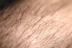 In places where normally no hair growth in women Hirsutism Definition: What Is Hirsutism?