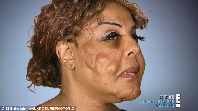 plastic surgery nightmare photos