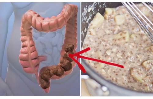 Homemade Mixture that Will Clean Your Colon of Toxic Waste Almost Immediately