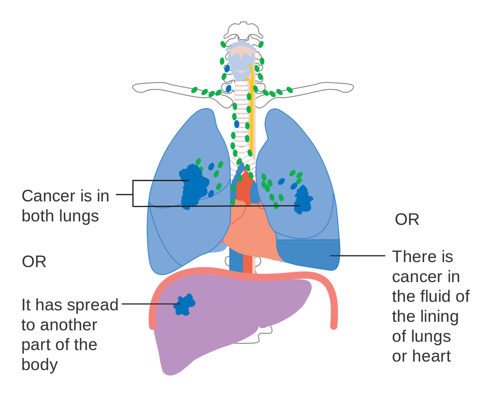 a scientific description of the cancer cells progression to infiltrate the lungs The pathogenesis of lung cancer is like other cancers, beginning with carcinogen-induced initiation events, followed by a long period of promotion and progression in a multistep process  see cancer genetics and cancer biology chapters for a description of how mutations like these can cause cancer.