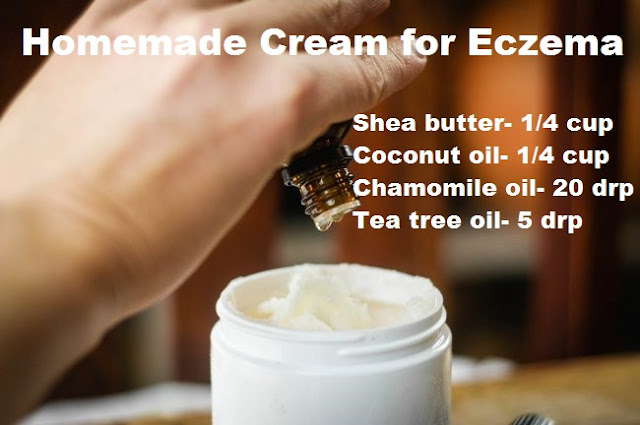 homemade-cream-eczema