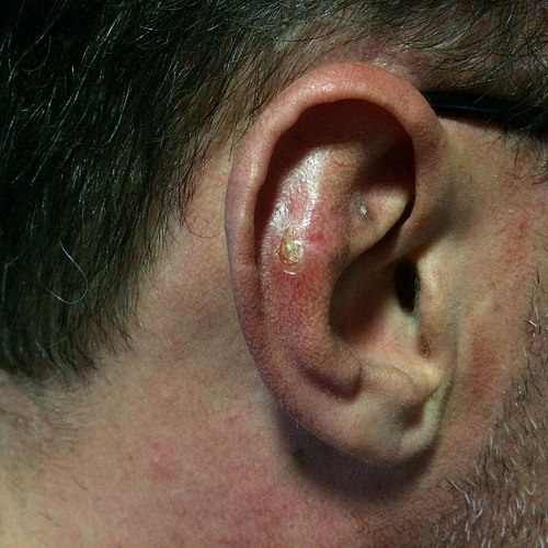 ear-cancer