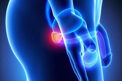 Cómo se propaga el cáncer de próstata