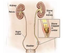 cara menghancurkan batu ginjal tanpa operasi,obat batu ginjal,obat kencing batu,cara mengeluarkan batu ginjal tanpa operasi,cara menghilangkan batu ginjal tanpa operasi