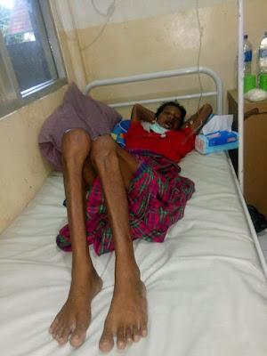 Dinkes Siap Bantu Supriyanto Hingga Sembuh