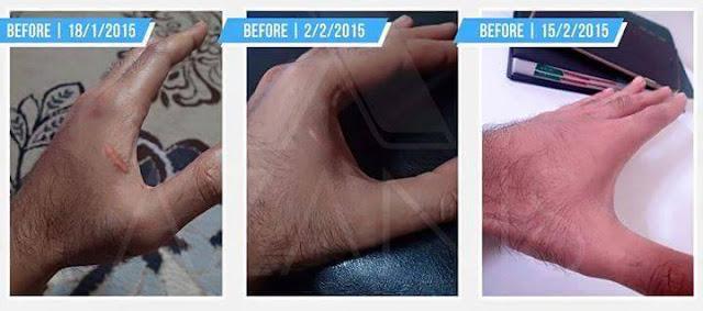 Cara hilangkan parut di tangan