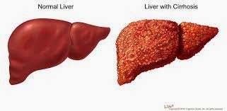 Healing Liver Cirrhosis: What Could Happen If You Don't ...
