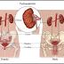 Definisi Penyebab Dan Pengobatan serta Gejala Klinis Penyakit Pielonefritis Menurut Ilmu Kedokteran