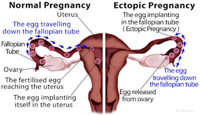 Kehamilan Ektopik Istriku Sayang Istriku Malang