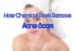 How Chemical Peels Remove Acne Scars
