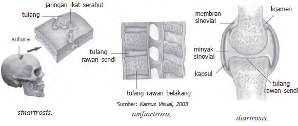 amfiartosis
