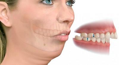 Niềng răng hô gồm những bước nào?