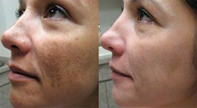 Review Serum trị nám Nanoluxe Dark Spot Remover by Reluma