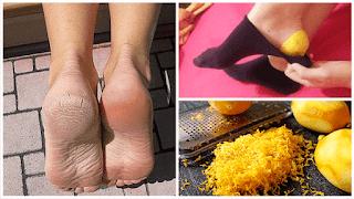 Découvrez pourquoi vous devriez mettre la peau de citron sur vos pieds avant d'aller dormir