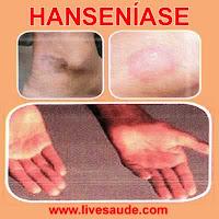 hansen%C3%ADase Hanseníase: Diagnóstico, Sintomas e Tratamento