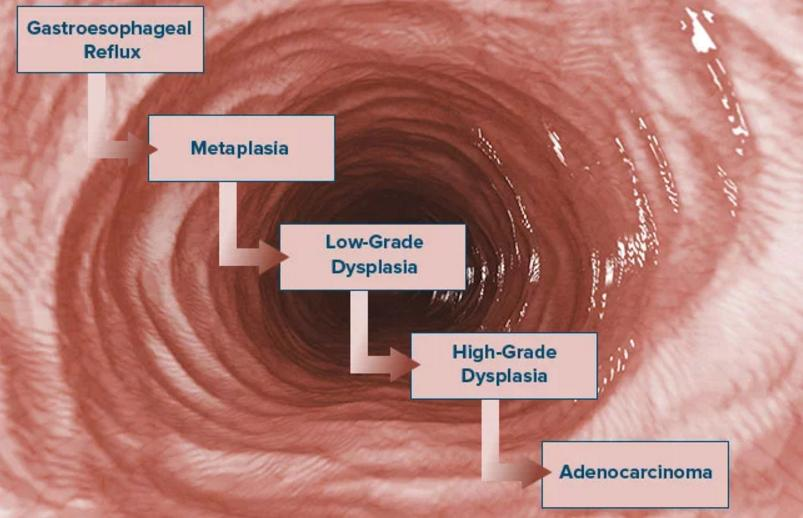 Advanced Esophageal Cancer Life Expectancy