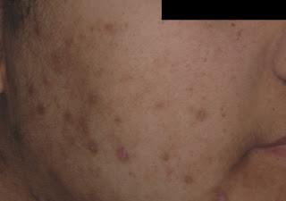 acne mancha, acne marca, acne hiperpigmentacion
