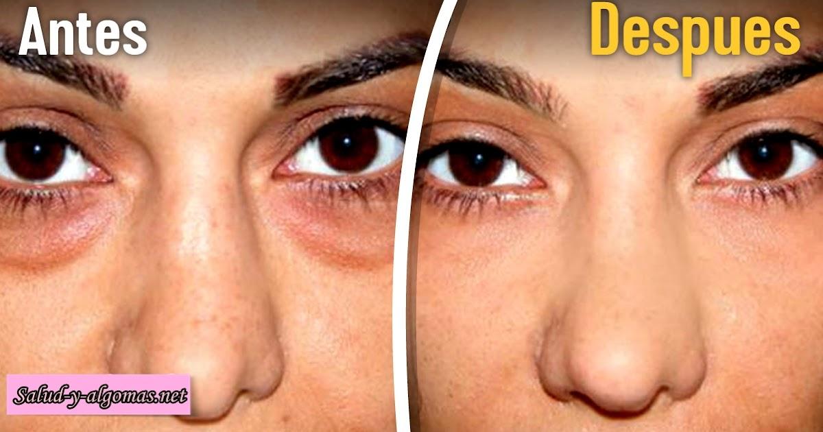 La máscara que limpia la piel para la persona de la avena pelada