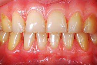 décoloration dentaire