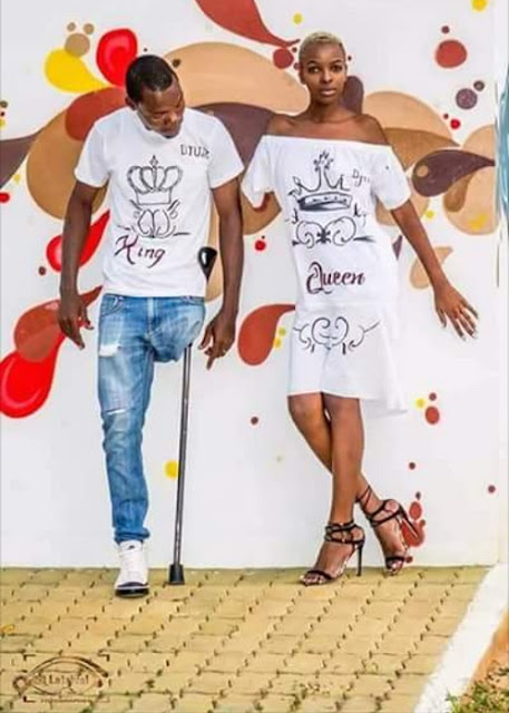 Pre-Wedding Photos Of Lovers Who Are Amputees
