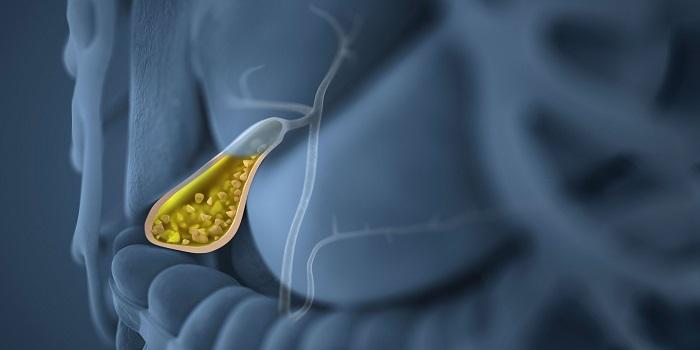 Ataque da Vesícula Biliar: Como é, Sintomas e Tratamentos