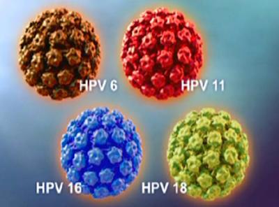 Kutil kelamin (HPV)