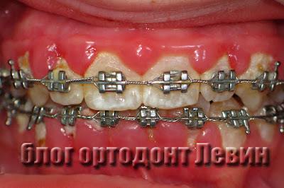 Брекеты и плохая чистка зубов