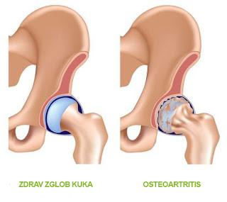 Zdrav zglob kuka i razvijen osteoartritis (upala zgloba) Panvet veterinarska ambulanta Subotica