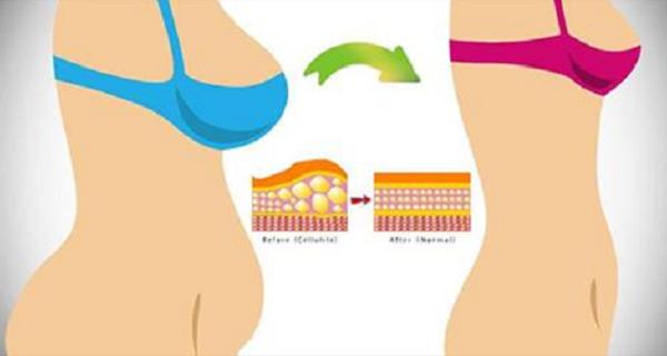 acest program de slabire elimina foarte eficient grasimile de pe abdomen
