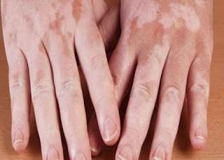 طبيب الجلدية يوضح حقيقة أن البهاق يعالج في جلسة واحدة