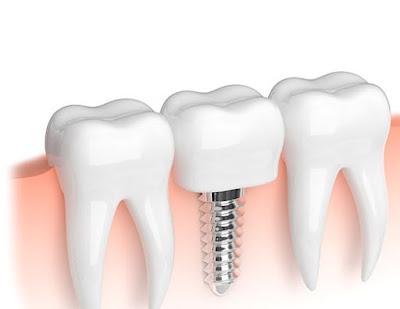 سعر زراعة الاسنان في جدة