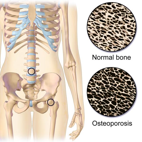 """"""" इस रोग के कारण टूट सकती है रीढ़ की हड्डी """"""""The disease may break due to the spinal cord""""""""Osteoporosis"""""""