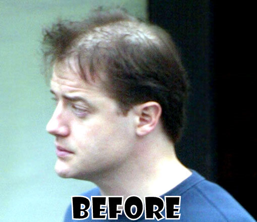 Brendan Fraser Plastic Surgery Before And After Hair
