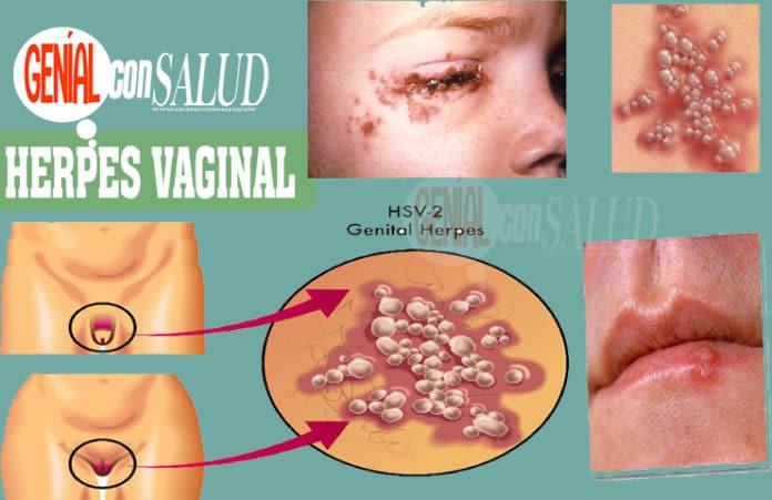 Cómo se contagia el herpes genital y cómo prevenirlo