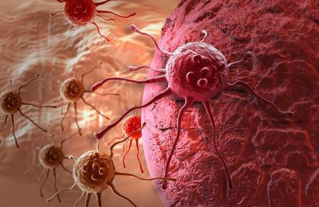 Pengertian Kanker : Pengobatan Kanker Secara Alami Paling Ampuh